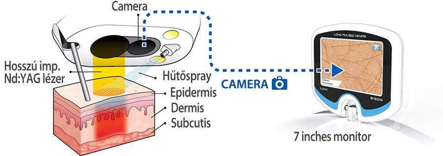 Automatikus bőrdiagnosztizáló rendszer - BISON Lucid LY orvosi lézer