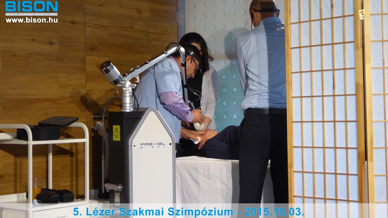 5. LÉZER SZAKMAI SZIMPÓZIUM - Bison Medical